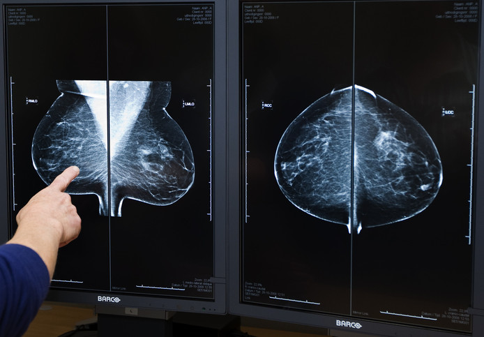 Een radioloog bekijkt digitale rontgenfoto's van borstkanker.