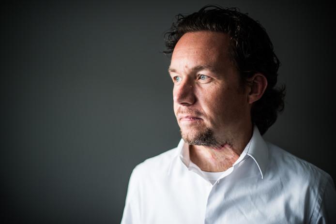 Titus Radstake. Hij is voorzitter van de patiëntenvereniging Brandwondenstichting.