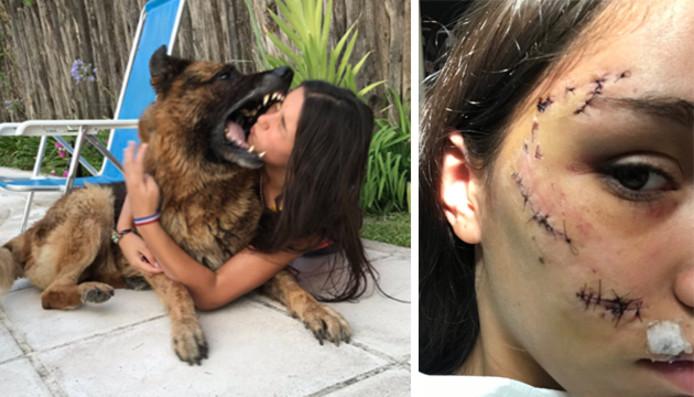 Lara a reçu 40 points de suture suite à la morsure de Kenai
