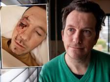 Politie zoekt 'lichtgetinte, kale man' en ontvangt tips na Opsporing Verzocht over mishandeling Balkbrug