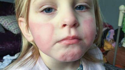 Vierjarige allergisch aan de zomer: gezin wordt gedwongen vakantie te annuleren