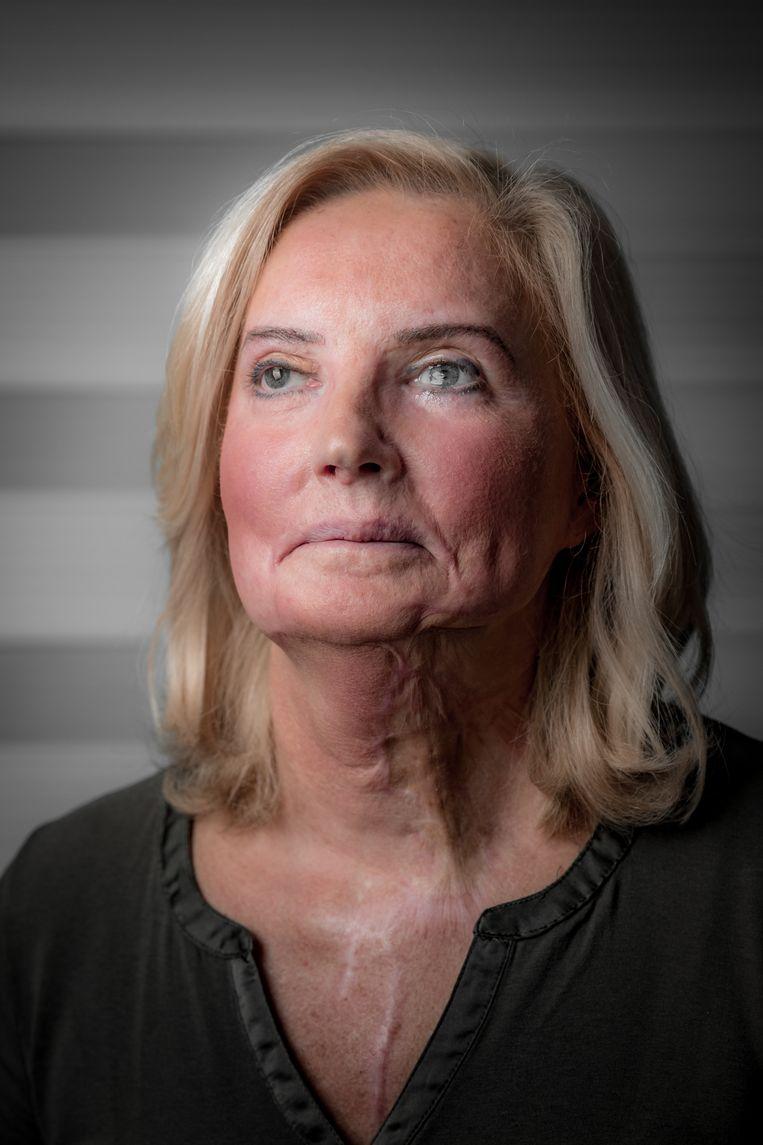 Marina Tijssen en haar man Frank van der Putten. Marina werd ooit met zuur aangevallen in de Delhaize. Ondertussen is ze weer aan het werk.