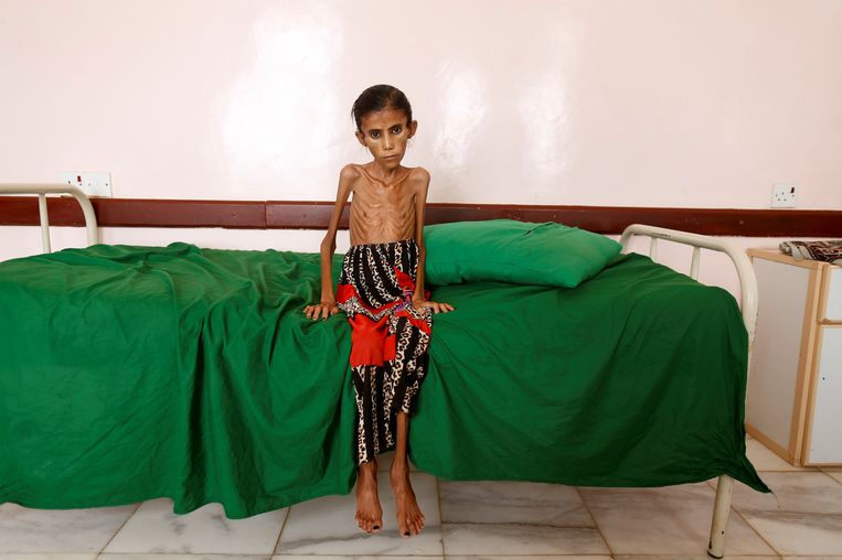 De 12-jarige Fatima Hadi woog, toen zij in februari in een ziekenhuis in het door oorlog verscheurde Jemen werd opgenomen, slechts 10 kilo. Beeld Reuters