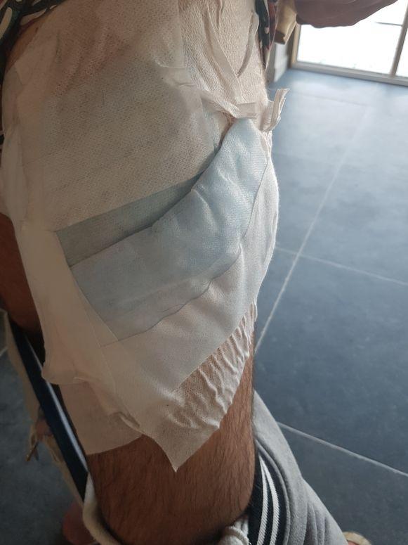Hij kreeg een joekel van een verband rond zijn bovenbeen.