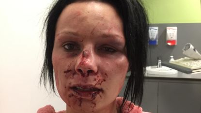 Vrouw bont en blauw geslagen door ex-vriend, maar gered via Facetime