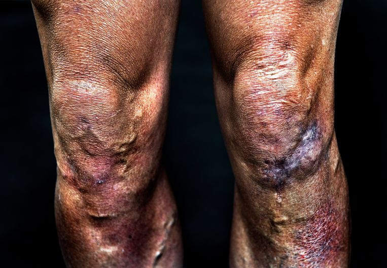 Littekens Erik Dekker: knieën overgehouden aan meerdere valpartijen onder meer de Mountainbike Crocodile Trophy in 2017. Beeld Klaas Jan van der Weij