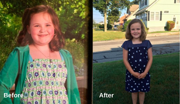 """De app werkt met voor- en nafoto's. """"Rebecca verloor 9 kilo en 10% van haar BMI!"""": het klinkt wrang als het over kinderen gaat."""