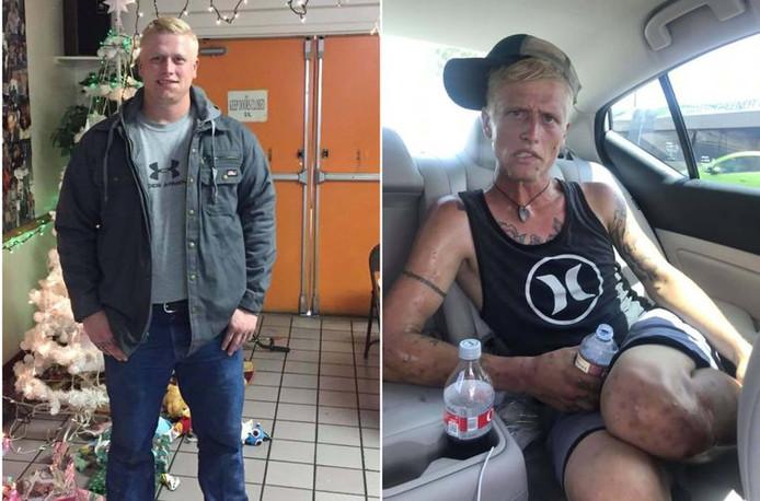 Cody Bishop voor en na. De rechterfoto van Cody Bishop werd zeven maanden later gemaakt. De transformatie die hij onderging is schrikwekkend.