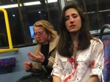 Vier tieners opgepakt na mishandeling lesbisch stel dat weigerde te zoenen