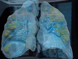 À quoi ressemblent les poumons d'un patient sévèrement touché par le coronavirus