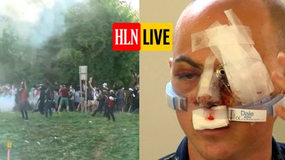 HLN LIVE. Politie in VS schiet op betoger tijdens protest, man raakt blind aan één oog