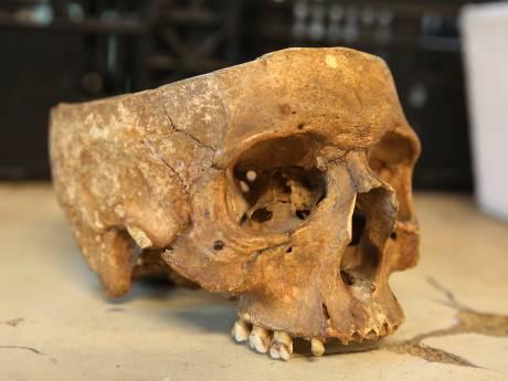 Medewerker vindt menselijke schedel in doos bij kringloopwinkel in Twello