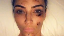 """Ziekte treft Kim Kardashian zwaar: """"Iemand moest mij aankleden omdat de pijn ondraaglijk was"""""""