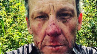 Armstrong deelt bloederige foto na fietsongeluk, in het ziekenhuis wacht hem grote verrassing