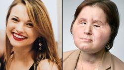 Katie probeerde uit leven te stappen toen ze 18 was. Ze krijgt 4 jaar later tweede kans met historische gezichtstransplantatie