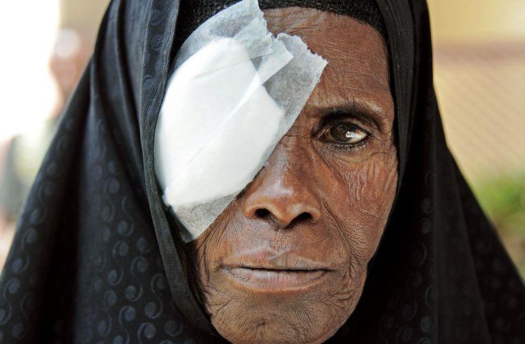 Na een staaroperatie heeft een Somalische vrouw een bandage voor haar oog. Beeld afp
