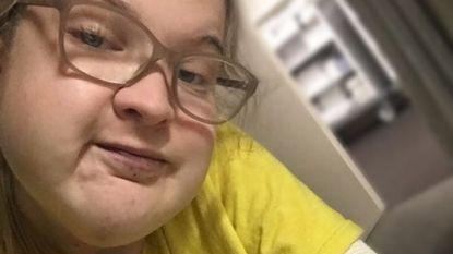 """""""Mensen noemen me dikkop"""": studente (18) met gezichtstumor roept pesten halt toe"""