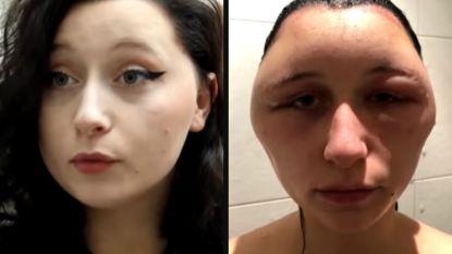 """""""Mijn hoofd zag eruit als een gloeilamp"""": haarkleuring van Estelle loopt helemaal fout"""