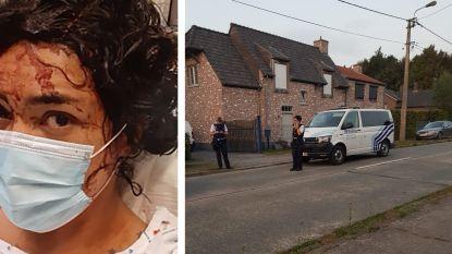 """Nelly Ruiz (32) stond doodsangsten uit tijdens aanval pitbulls: """"In foetushouding gaan liggen om mezelf te beschermen"""""""