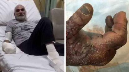 Canadese ultra-race onder vuur nadat deelnemer handen en voeten moet laten amputeren door extreme vrieskou