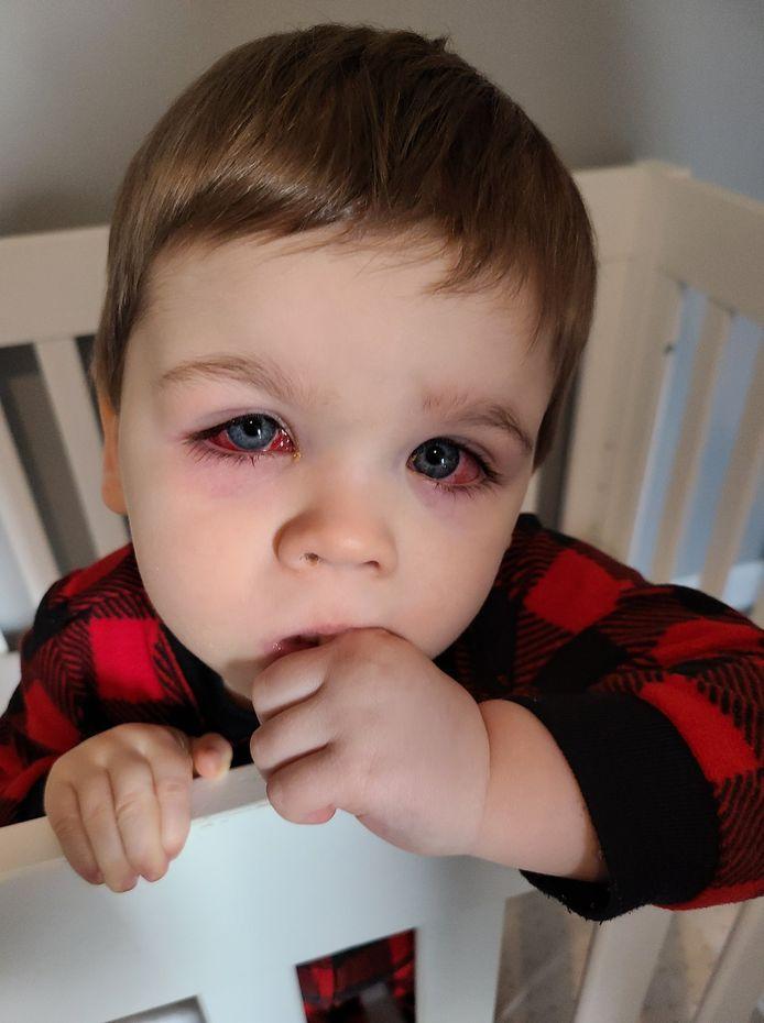 Baylor a contracté une grave infection aux yeux.