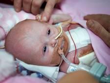 Baby wordt geboren met hart buiten lichaam