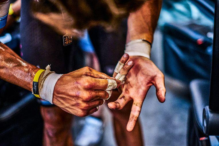 De handen van Bob Jungels na de Roubaix-rit in de Tour. De Luxemburger, die ook tegen de vlakte ging, meet de schade op.