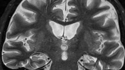 """""""Hoe vroeger je alzheimer behandelt, hoe meer er te winnen valt"""": waarom een vroege diagnose ook bij een ongeneeslijke ziekte zinvol is"""