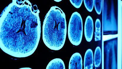 Leuvens bedrijf laat algoritmes los op hersenscans: computer ziet wat dokters niet zien