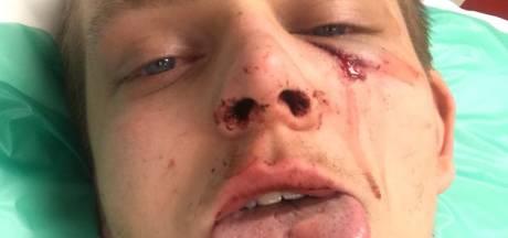 Eindhovenaar (21) mishandeld na kampioensfeest PSV: 'Ik ben een paar minuten helemaal kwijt'