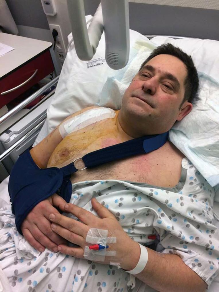 Guy Vantoortelboom na zijn operatie.
