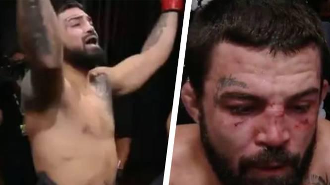 UFC-vechter Mike Perry reageert geweldig wanneer hij bij intrede verkeerdelijk Beyoncé hoort (maar dan breekt hij zijn neus)