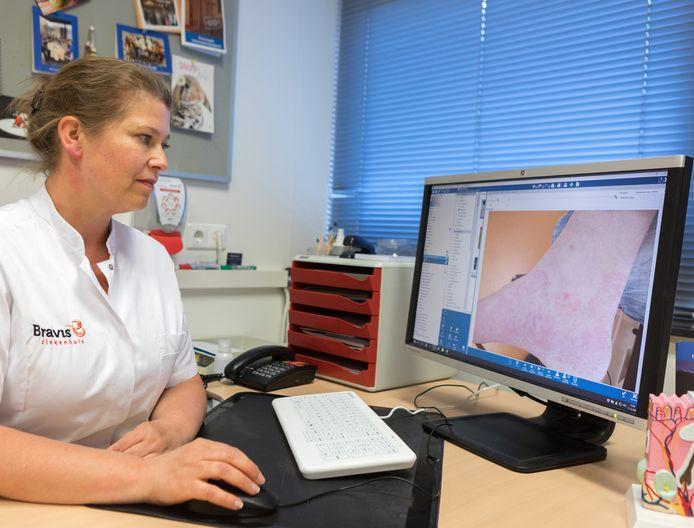 Dermatoloog Sarah den Hengst van het Bravis ziekenhuis in Roosendaal beoordeelt een foto van een huidaandoening.