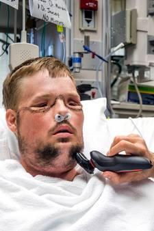 Andy is eerste patiënt nieuw gezichtstransplantatieprogramma