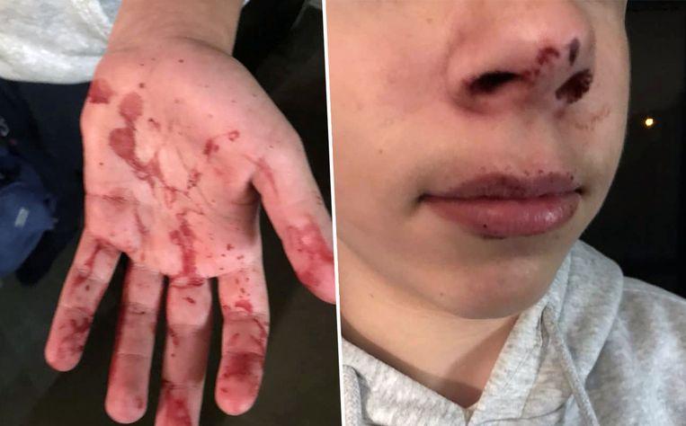 Gilles (13) werd aangevallen in het Zuidpark