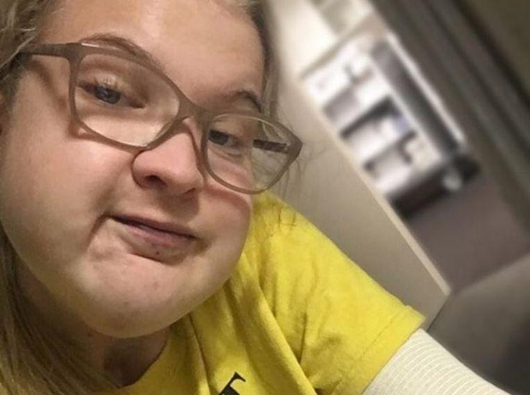De 18-jarige Phoebe McIndoe werd geboren met een gezichtstumor.