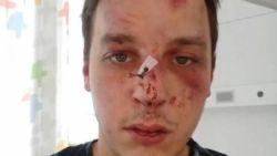 Brusselaar slachtoffer van homofoob geweld in Knokke