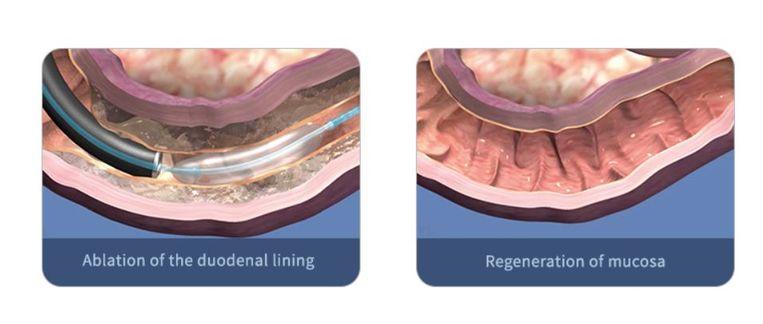 Via een katheter door de keel wordt een ballon, opgevuld met met warm water, met een endoscoop in de dunne darm (de twaalfvingerige darm) geschoven. De ballon verwarmt vervolgens de cellen volgens de methode 'Duodenum Mucosal Resurfacing (DMR)'. DMR is ontworpen om het slijmvlies van de dunne darm op een veilige manier te wijzigen.