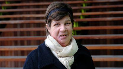 Zuurgooier die ex-vriendin zwaar verminkte, krijgt ook in beroep 20 jaar cel