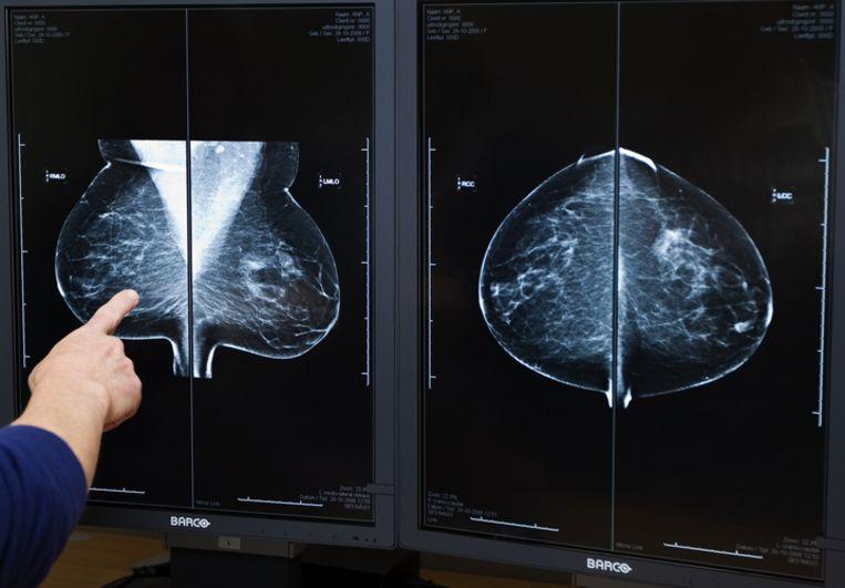 Voorlopig is de werking van het enzym alleen vastgesteld in muizen met borstkanker. De onderzoekers vermoeden evenwel dat de werking ook opgaat bij mensen en ook bij andere soorten kanker. Foto ANP/Koen Suyk Beeld