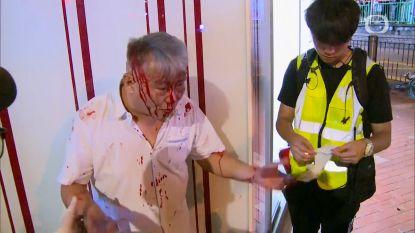 Mensen tot bloedens toe op de vuist in Hongkong