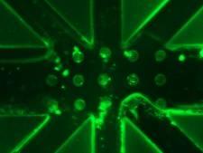 Nieuwe sensor van TU Eindhoven laat nierdialyse beter werken