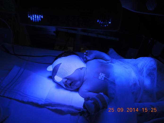 Om het bilirubinegehalte in het bloed te verlagen, krijgen baby's lichttherapie in het ziekenhuis.