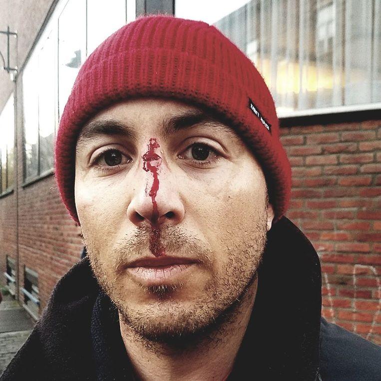 Vader Laurent hield er een gebroken neus aan over.