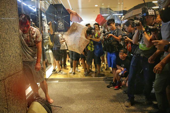 Media verzamelen zich rondom de gewonde aanvaller in Hong Kong. De man, die om zich heen stak met een mes en een oor van een parlementslid afbeet, werd zwaar toegetakeld door omstanders voordat de politie arriveerde.