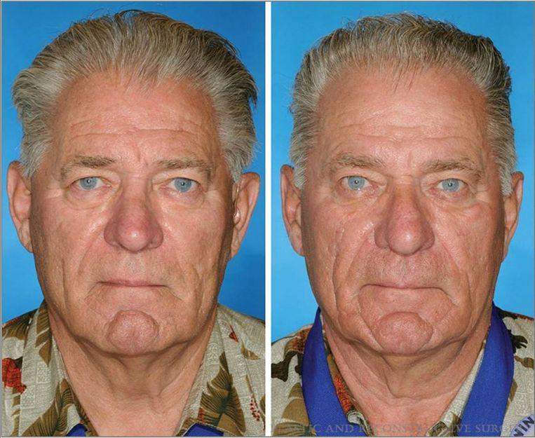 De man rechts rookte veertien jaar langer dan zijn tweelingbroer. Beeld
