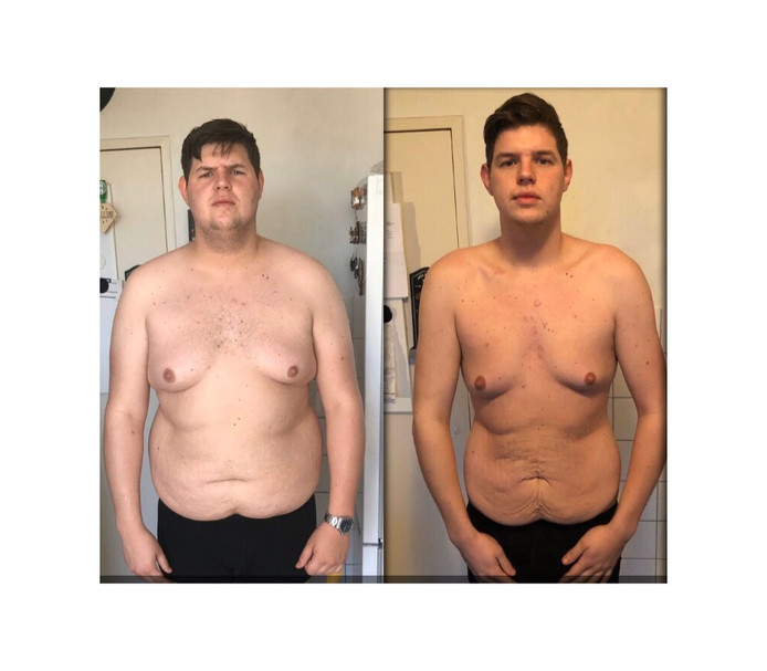 Rick Janssen (21) uit Oss viel in een jaar tijd vijftig kilo af. Nu is hij een crowdfunding gestart om de operatie aan zijn buik, om het overtollige vel weg te halen, te bekostigen.