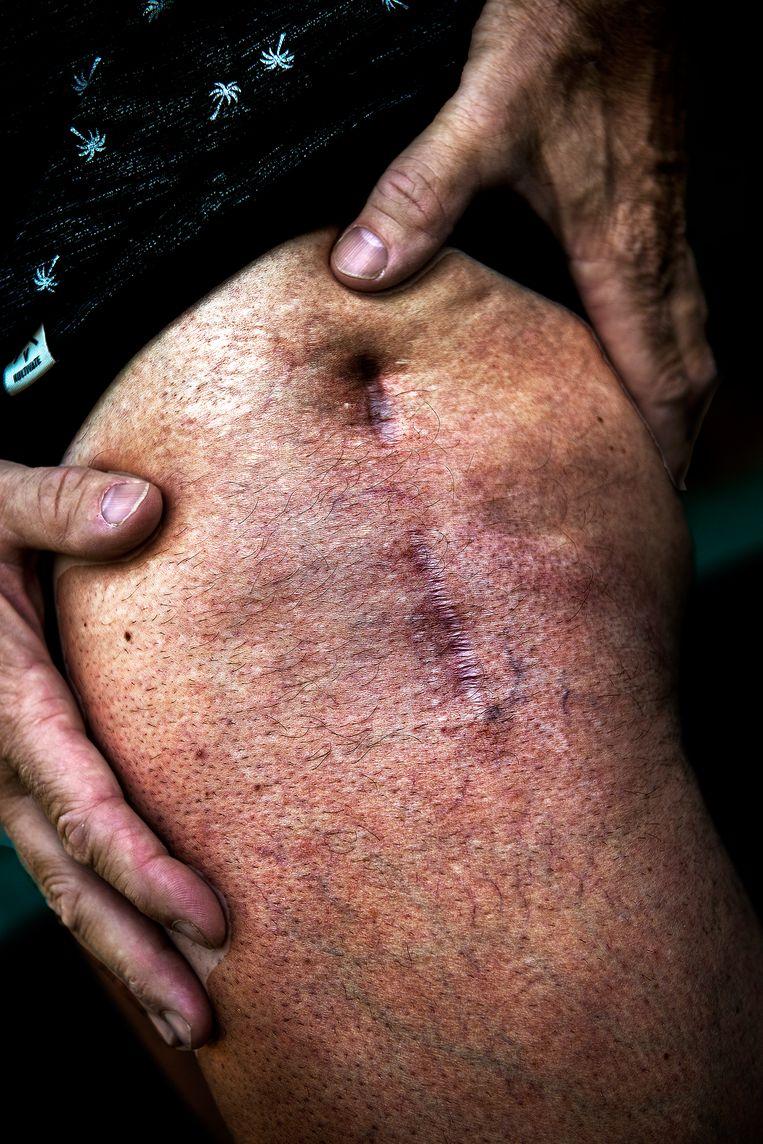 Littekens Erik Dekker: heup (links) overgehouden aan val in Milaan-San Remo in 2002. Beeld Klaas Jan van der Weij